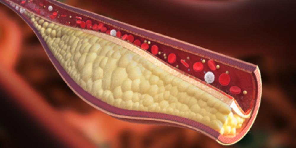 Rx Cholesterol Diet Plan