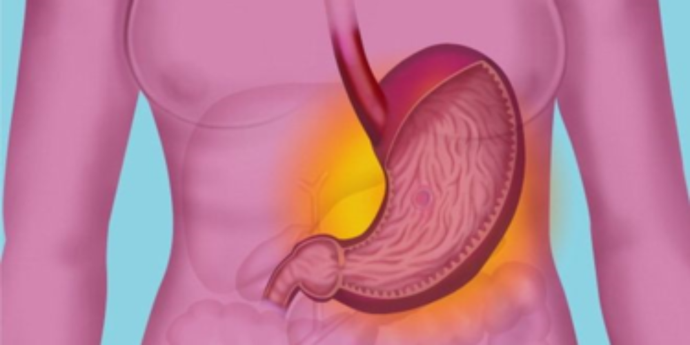 Rx Peptic Ulcer Diet Plan